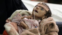 Jemenitisches Opfer des saudischen Kriegs, unterstützt von USA und EU